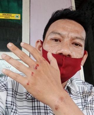 Liput Sengketa Tanah, Wartawan di Palembang Dikeroyok